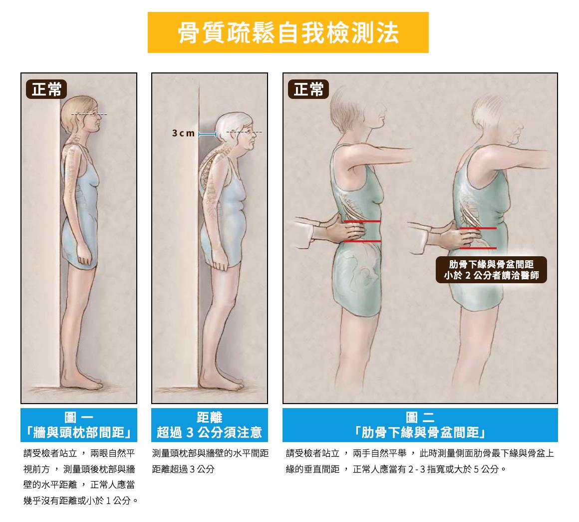 鈣片新聞稿-骨鬆檢測第三篇-圖一 1090303